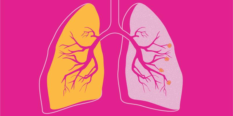 Quiz: What is COPD Or Chronic Obstructive Pulmonary Disease?