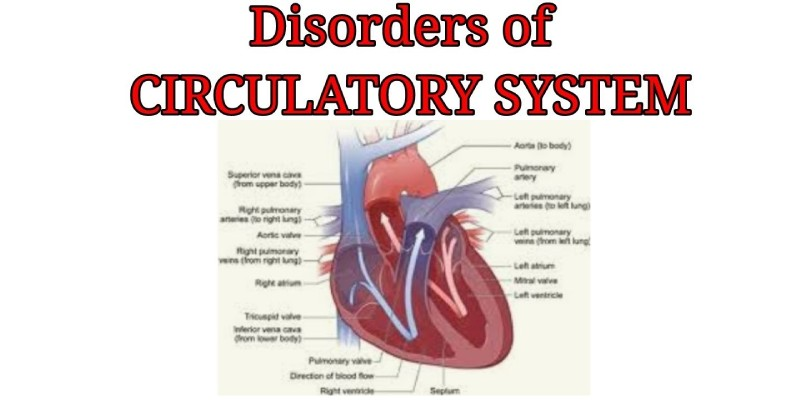 Disease of the Circulatory System Quiz