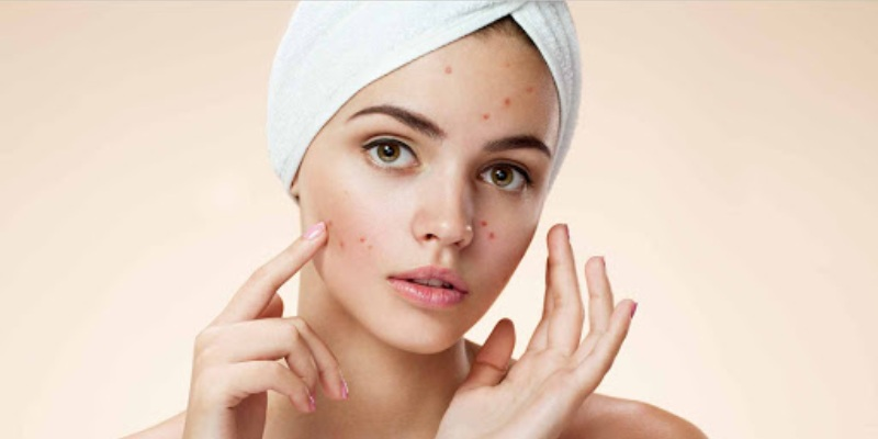 Quiz: What Type of Acne Do I Have?